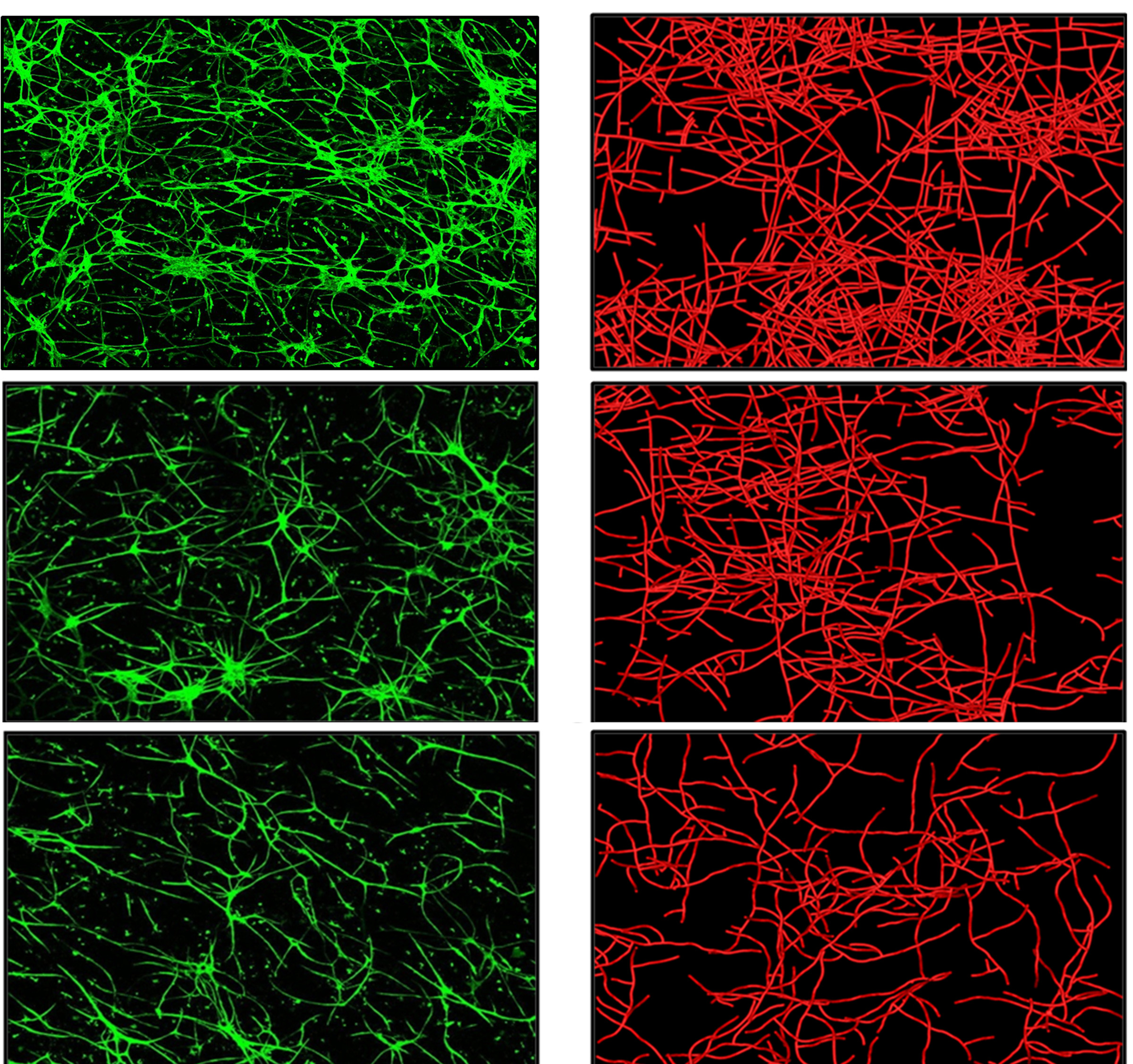 """The microscope images on the left (green) show real blood vessels growing in culture, while the images on the right (red) are from a computer simulation of blood vessel growth. The top images show real and simulated blood vessel growth when vessel fragments are placed in an """"extracellular matrix"""" of collagen with a relatively low density. The middle and bottom images show how blood vessel growth is impeded when they are placed in collagen matrix with medium and higher density, respectively. University of Utah bioengineers say the computer simulation of blood vessel growth is an early step toward new treatments to provide better blood supply to skin grafts and implanted ligament and tendon, as well as tissues damaged by diabetes and heart attack."""