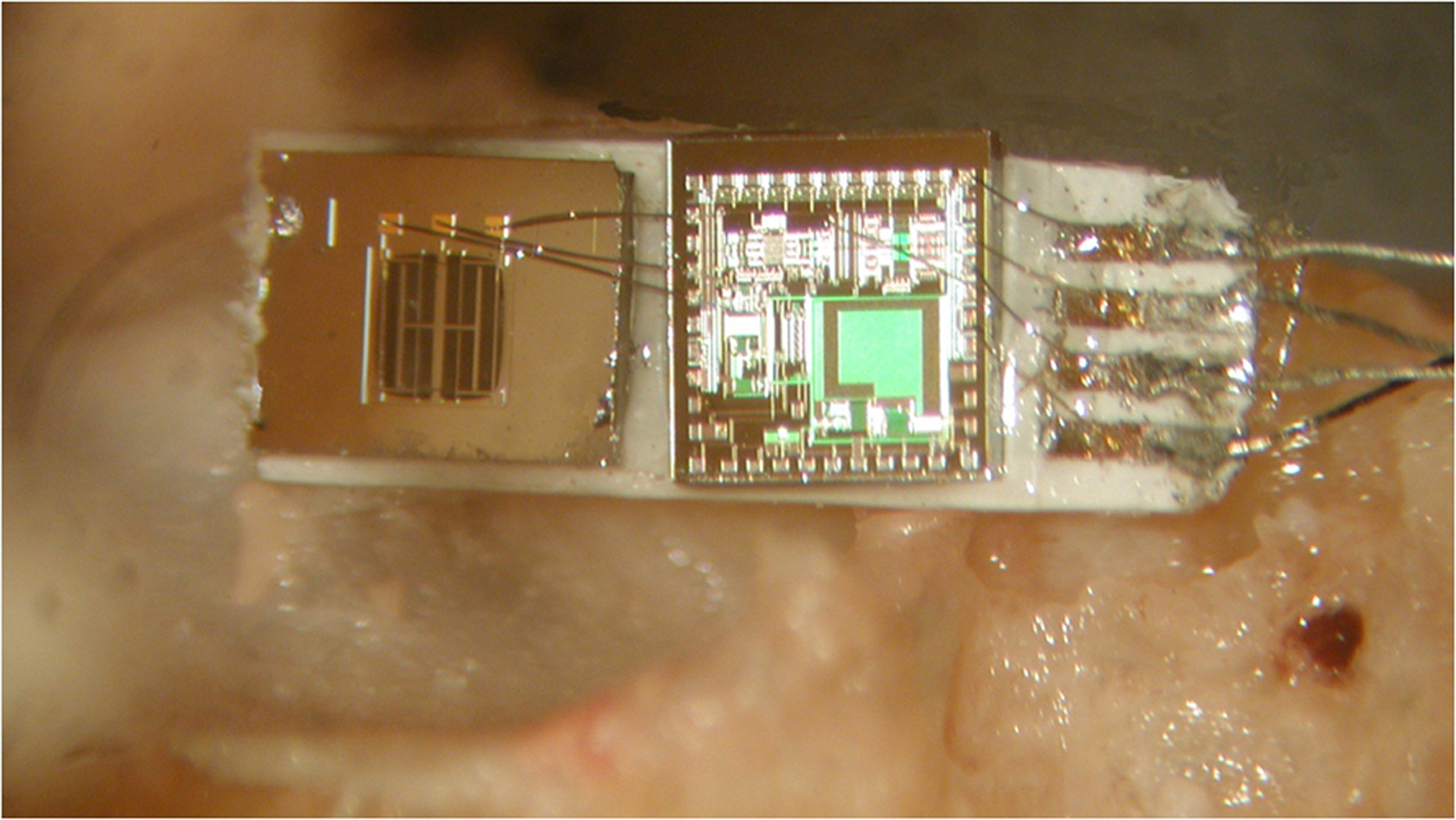 A new kind of tiny microphone is shown here attached at right to a cadaver's umbo, where the eardrum (under left part of device) meets the hearing bones. The microphone includes an accelerometer and silicon chip that detect vibrations and convert them to electronic signals sent to electrodes in the inner ear's cochlea, and from there to the brain. The device measures about one-tenth inch by one-quarter inch.