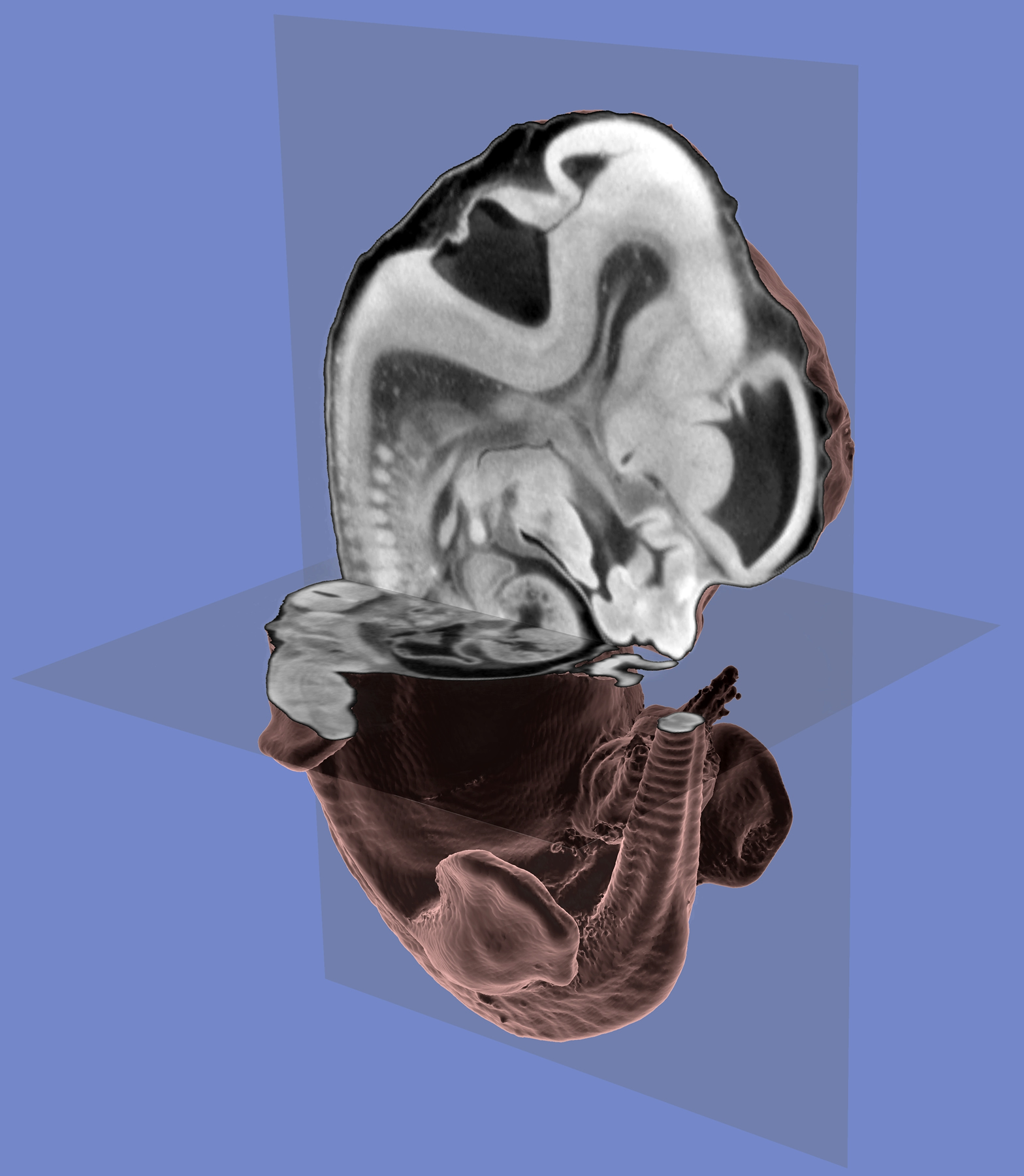 """This three-dimensional computer image of a mouse embryo was created using data collected during a CT (computerized tomography) scan of the embryo. The CT scan uses X-rays to make a series of images of """"slices"""" of the embryo. Those """"slices"""" then were combined and interpreted by computer software to create the 3-D image showing not only the embryo's exterior but its internal features. The new method should make it easier for geneticists to learn what various genes do; they can disable individual genes, then actually see internal and external defects in 3D images of the mutant mouse embryos. In this image, the mouse embryo's head is at the top, its tail is visible on the right side of the bottom part of the image, and its rear legs are on either side of the tail."""