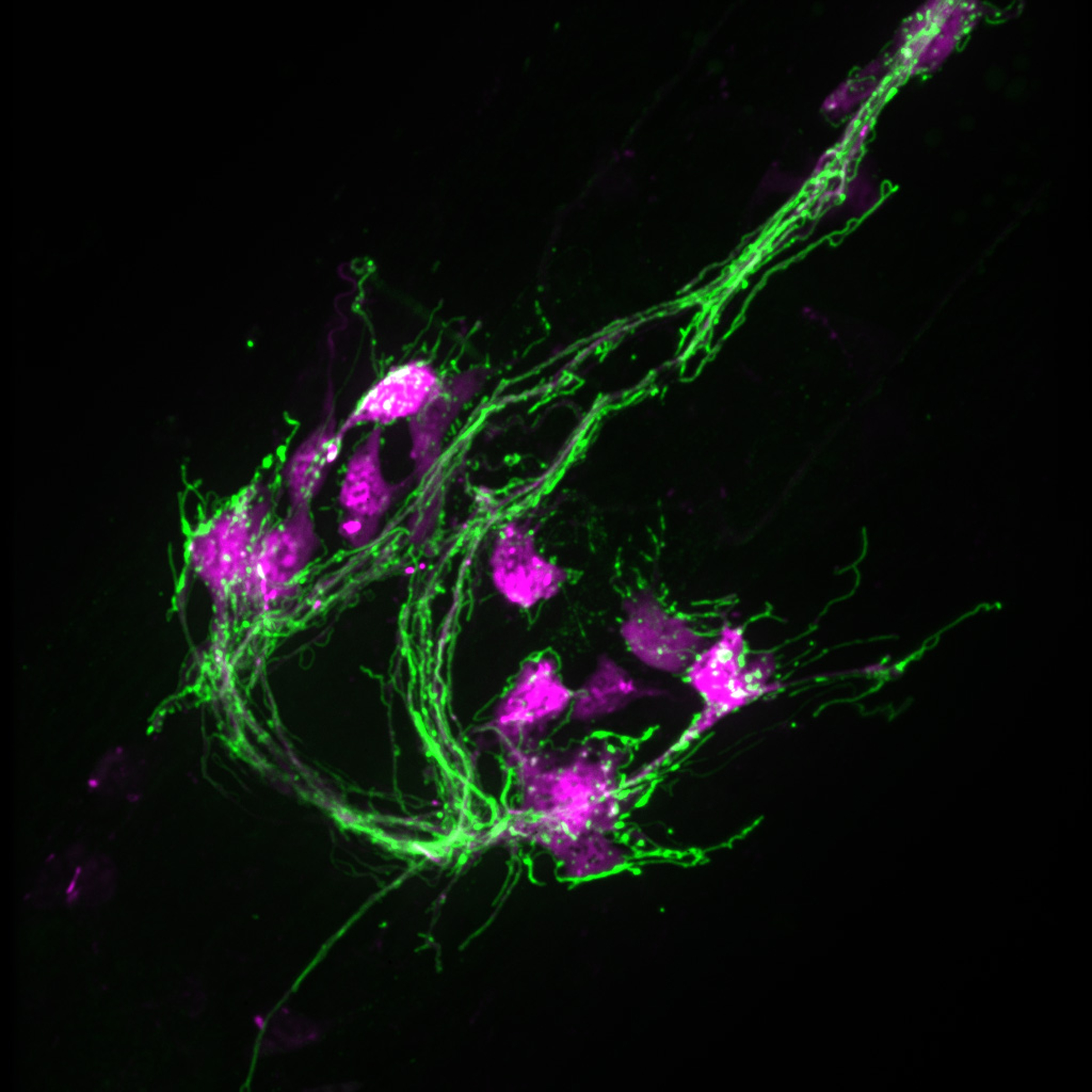 Neuron or nerve cells from a worm, shown here with nerve fibers in green and neuron cell bodies in red.