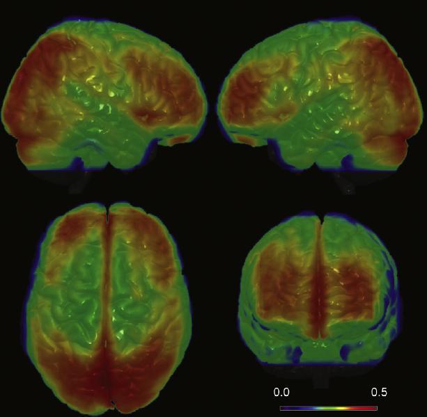 Local brain connectivity Fig. 2